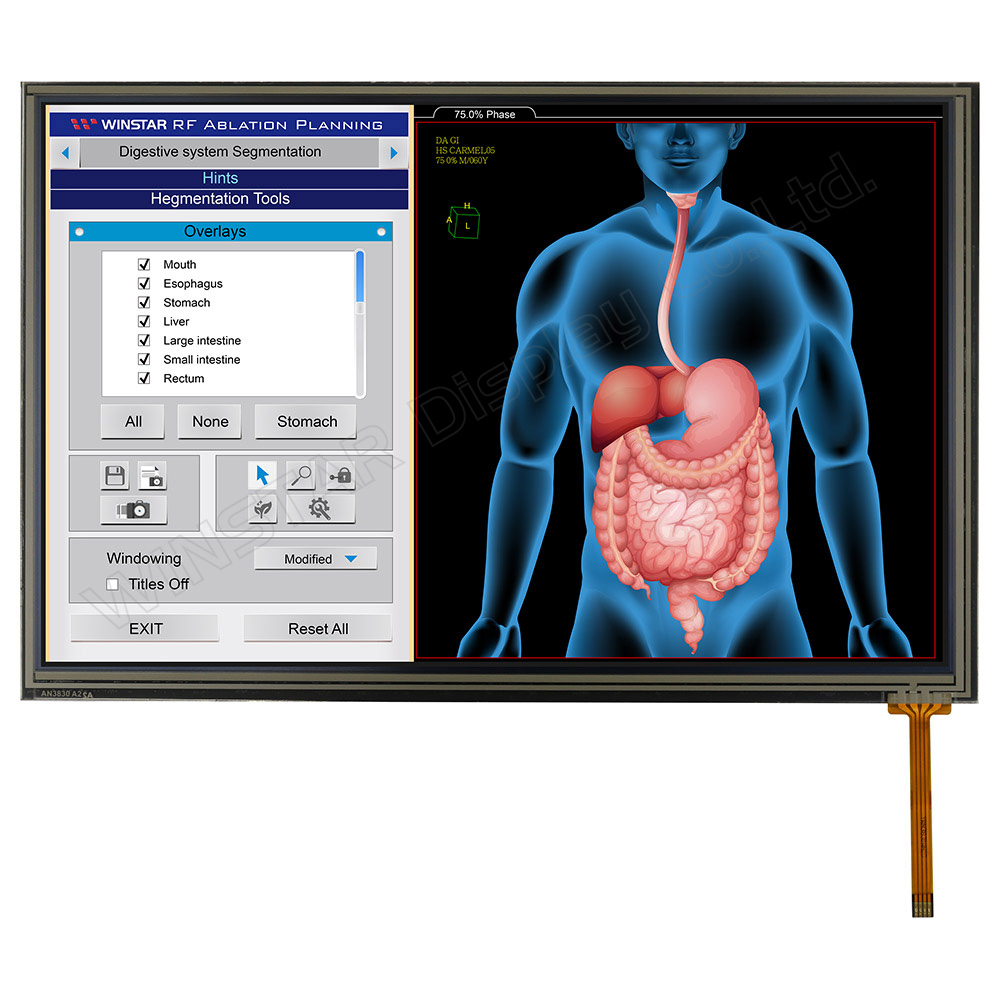 Full HD IPS Display, Full HD LCD 10,1 Zoll - LVDS